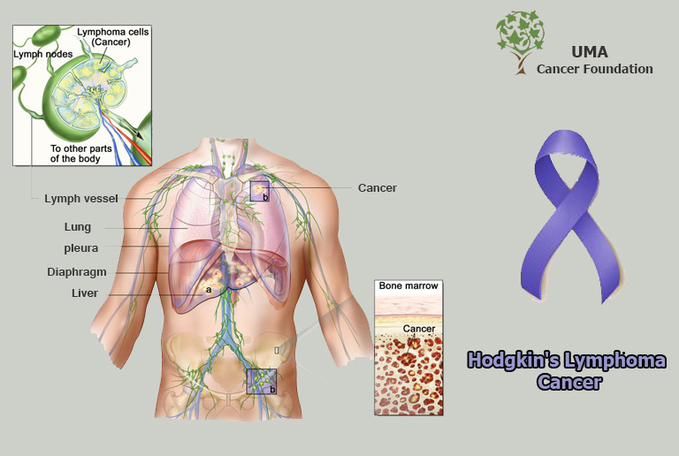 Hodgkin's_Lymphoma_Cancer